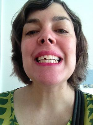 May chipped tooth
