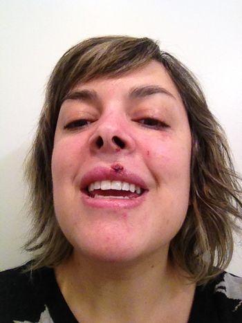 Monday teeth