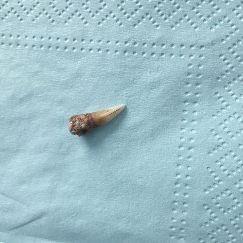 Sukey's tooth